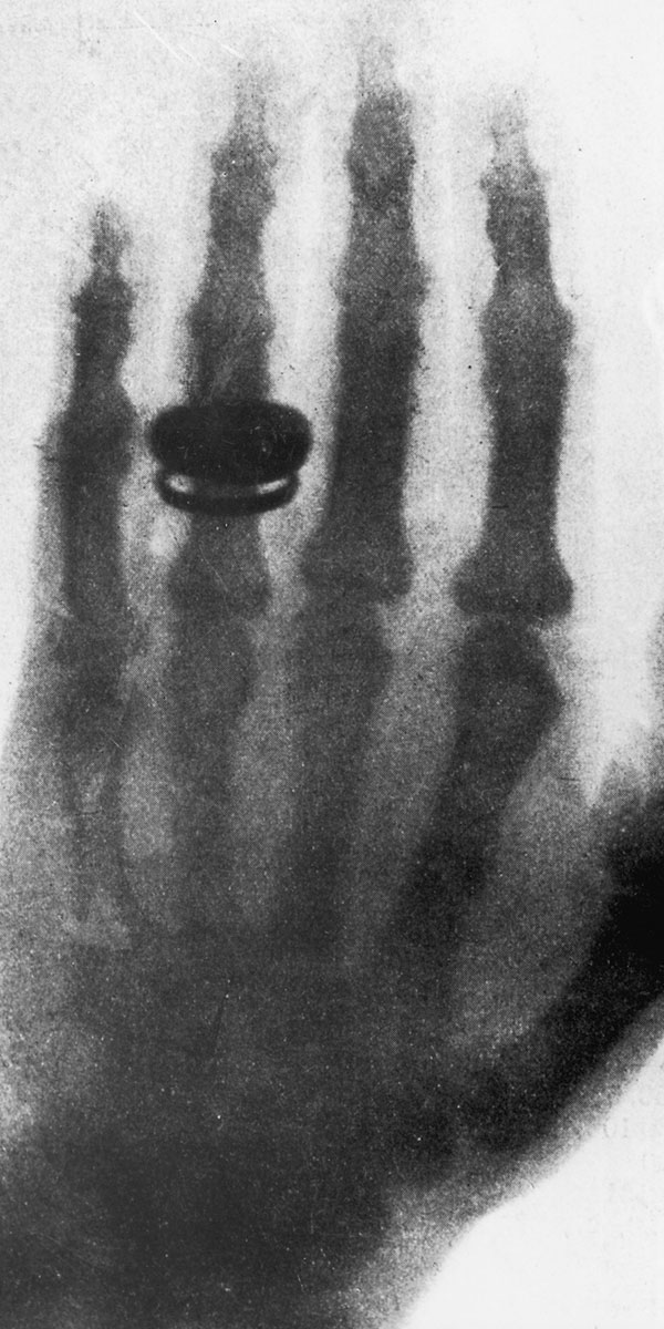 the-first-xray-img